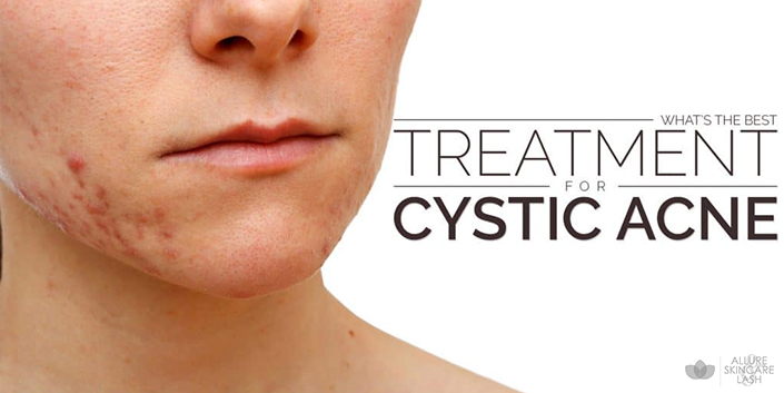 acne Adult causes cystic